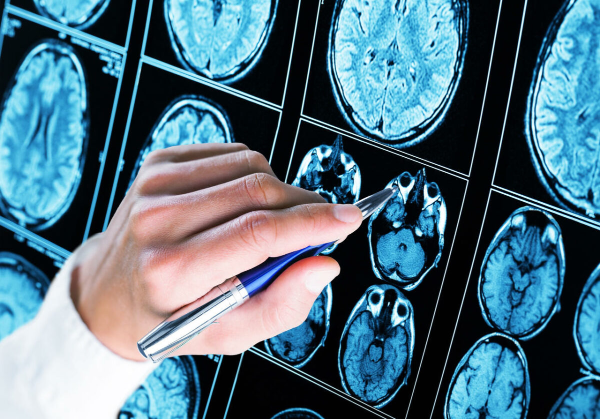 Padaczka - lekarz analizujący wynik badania mózgu.